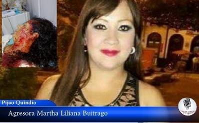 Casi la asesinan a puñal en Pijao y siguen las amenazas en su contra, (VER VIDEO)